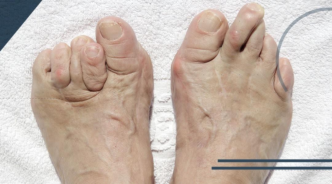 Cos'è la deformità del piede?