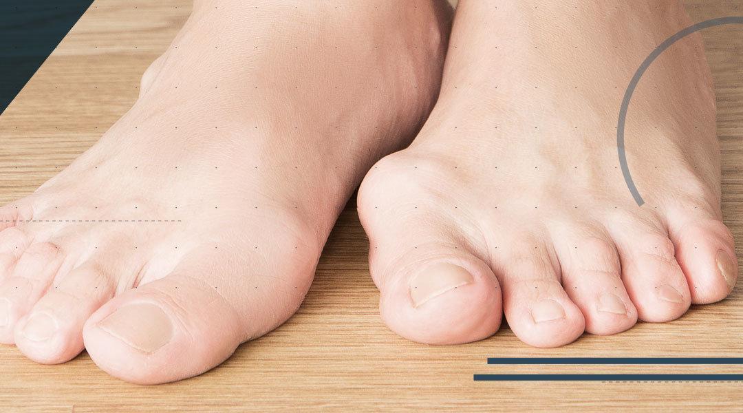 Alluce Valgo: le patologie correlate