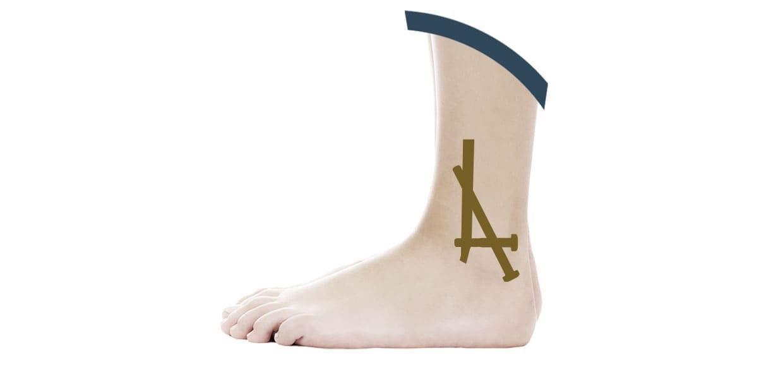 artrodesi caviglia vs protesi