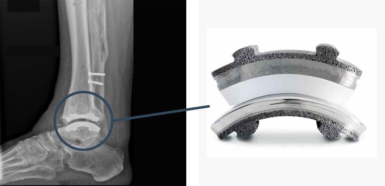 intervento protesi caviglia